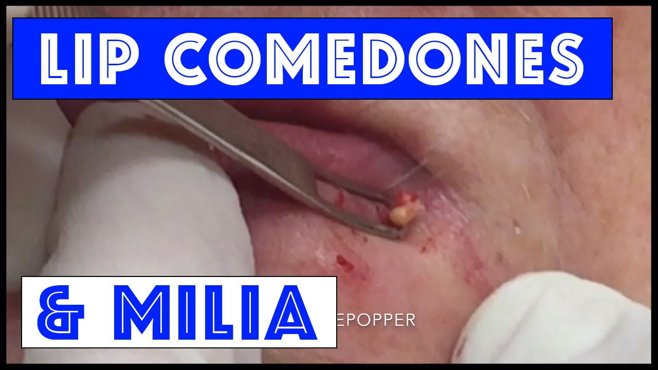 Milia Around The Mouth That Were Stubborn Youtube