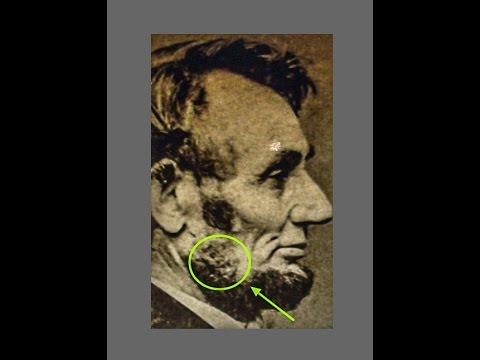 Strange Device On Abraham Lincoln