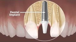 Dental Implants Quincy MA -617-328-1726