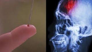✅ Oto prosta metoda, która może ocalić ci życie po udarze mózgu...