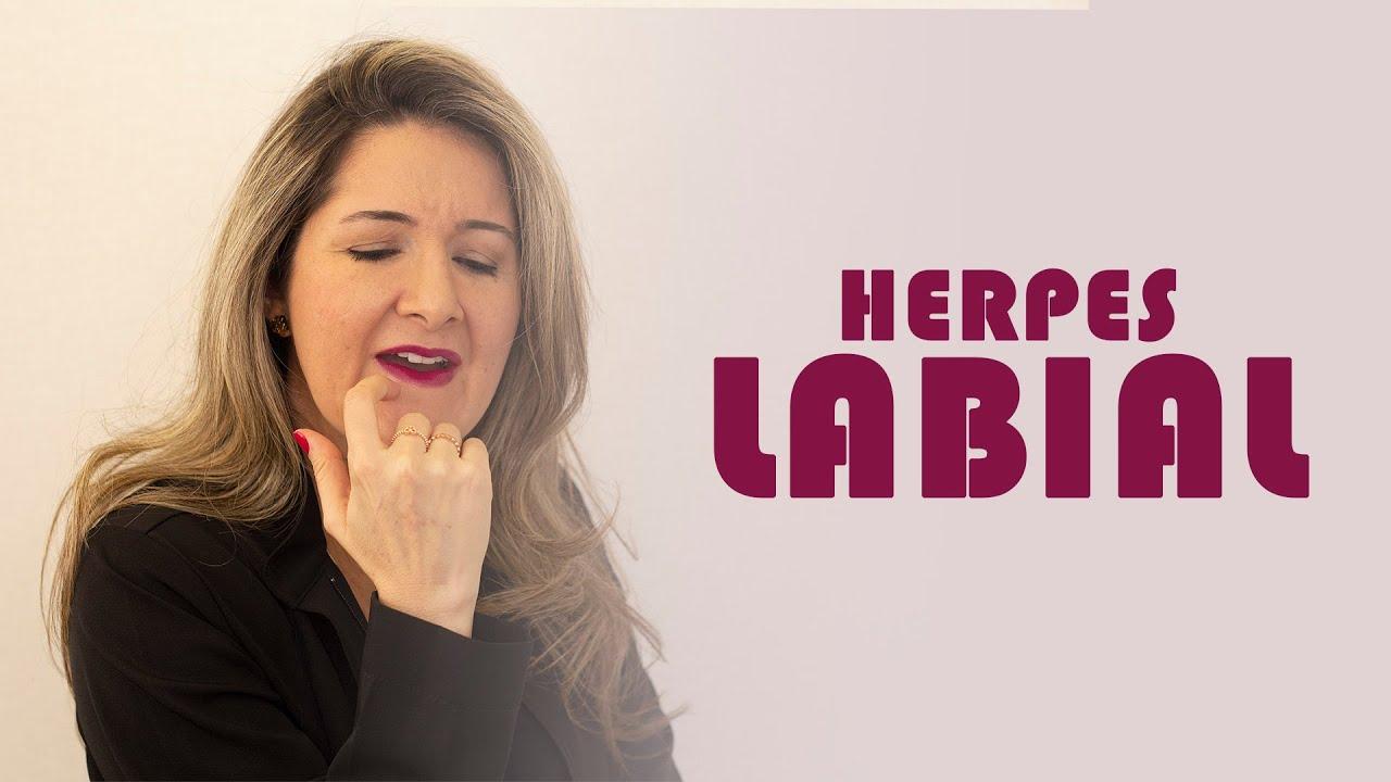 COMO TRATAR A HERPES LABIAL