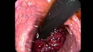 Colonoscopia Realizada en Completa Retroflexión desde el CIEGO HASTA EL RECTO