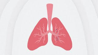 The Double Battle of Covid-19 Related Pneumonia