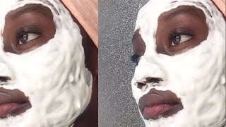 2 INGREDIENTS to SHRINK/TIGHTEN PORES & Skin | Clear Acne Scars | DIY MASK