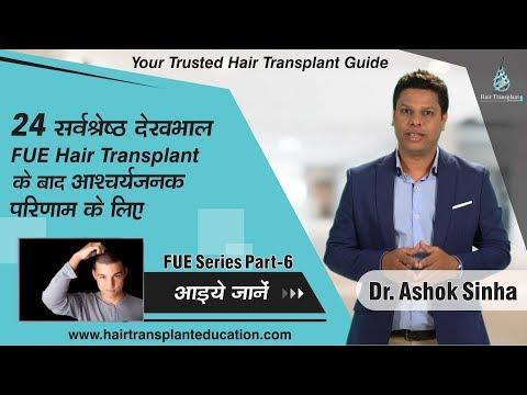 POST FUE HAIR TRANSPLANT CARE- DR ASHOK SINHA