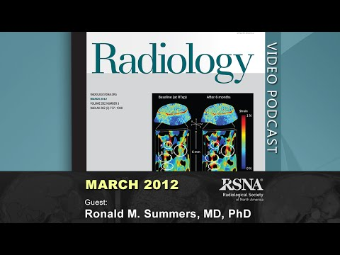 Distributed Human Intelligence for CT Colonography (March 2012 Radiology Podcast)
