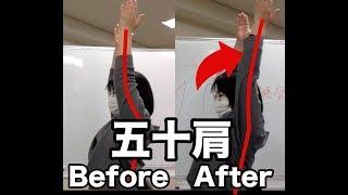 【五十肩】腕橈骨筋リリーステクニック thumbnail
