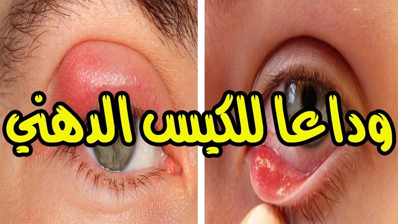 علاج الكيس الدهني في العين بهذا الدوء قل وداعا للكيس الدهني في العين مهما كان نوعه Youtube