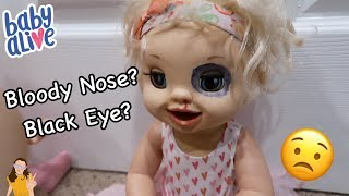 Baby Alive Emma Gets a Black Eye & Bloody Nose?! 😳 | Kelli Maple