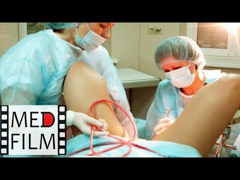 Влагалищные акушерские операции, проф. Ванина Л.В. © Vaginal obstetric operations