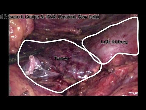 How to Remove Adrenal Gland (Lap Adrenalectomy) by Dr P P Singh