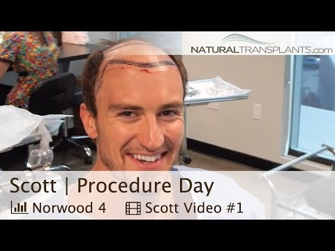 Best Hair Transplants in Miami, Florida - Hair Restoration Experts (Scott)