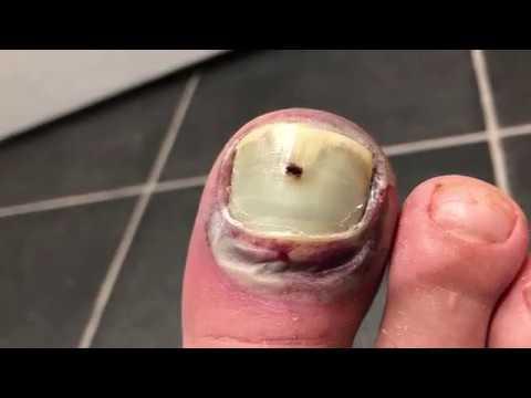 Broken crushed toe  popping the blood blister  GROSS
