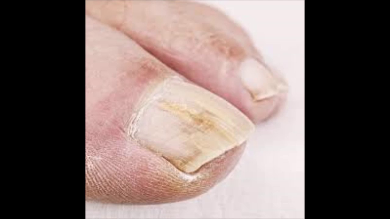 How To Get Rid Of Nail Fungus From Artificial Nails - YouTube
