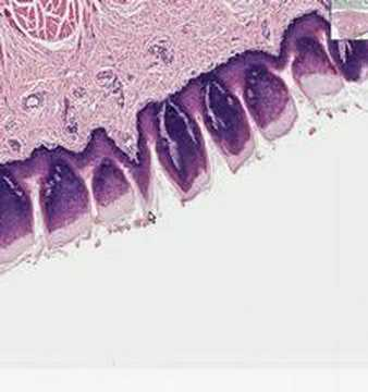 Shotgun Histology Tongue