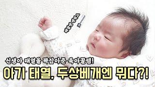 신생아 태열 잡기 대작전/태열베개추천 엔픽스 허니쿨