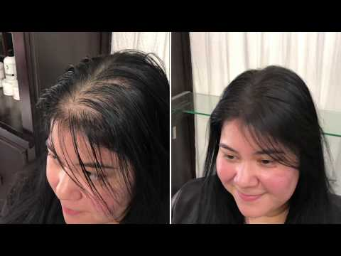 hair-cubed-simple-and-easy-to-use-women's-thinning-hair--try-it--if-you-are-having-thinning-hair
