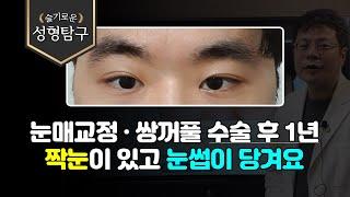 Q. 눈매교정·쌍꺼풀 수술 후  1년, 짝눈이 있고 눈…