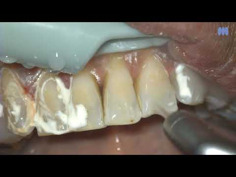 施術後の洗浄 | 歯面研磨材 LUNOSプロフィーペースト