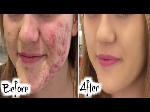 how-to-get-rid-of-acne-scars-say-goodbye-acne-scars-with-this-turmeric-face-mask-fast