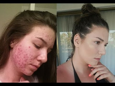 Cystic Acne Story  Diagnosed with PCOS   Adult Acne