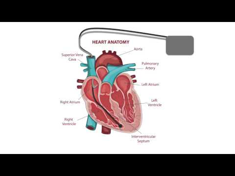 Common pacemaker problems (part 2): Undersensing