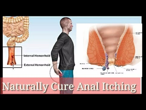Naturally Cure Anal Itching@How To Remove Anal Itching At 🏡