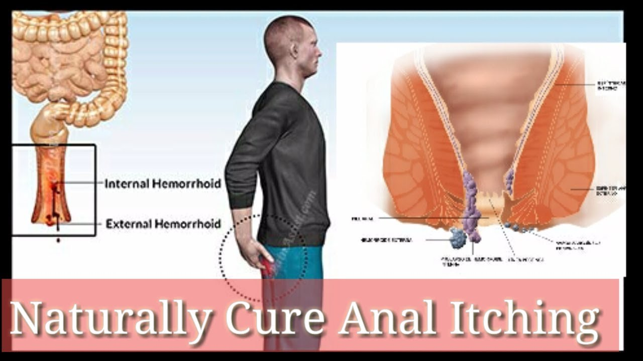 itchy anus for Cure