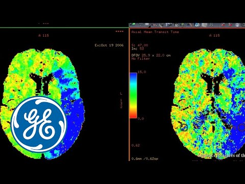 GE AW CT Perfusion 4D Radiology Imaging Software Video