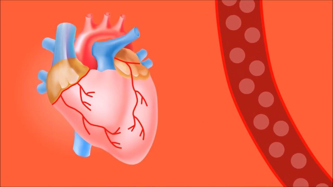 Kalp ağrısı neden olur?