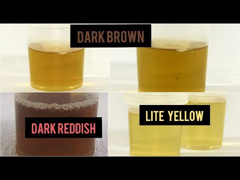Your Urine Color Causes And Health Conditions You Must Know/Dark Brown Urine/Dark Red Urine/yellow