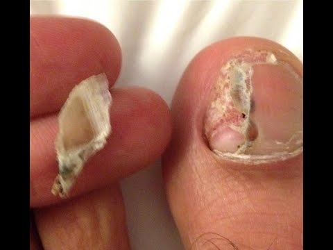 Black, Red or Bruised Toenail - *Ultimate Cure* - YouTube