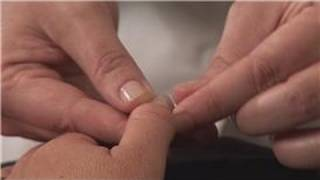 Acupressure : Acupressure & Numbness in the Fingers