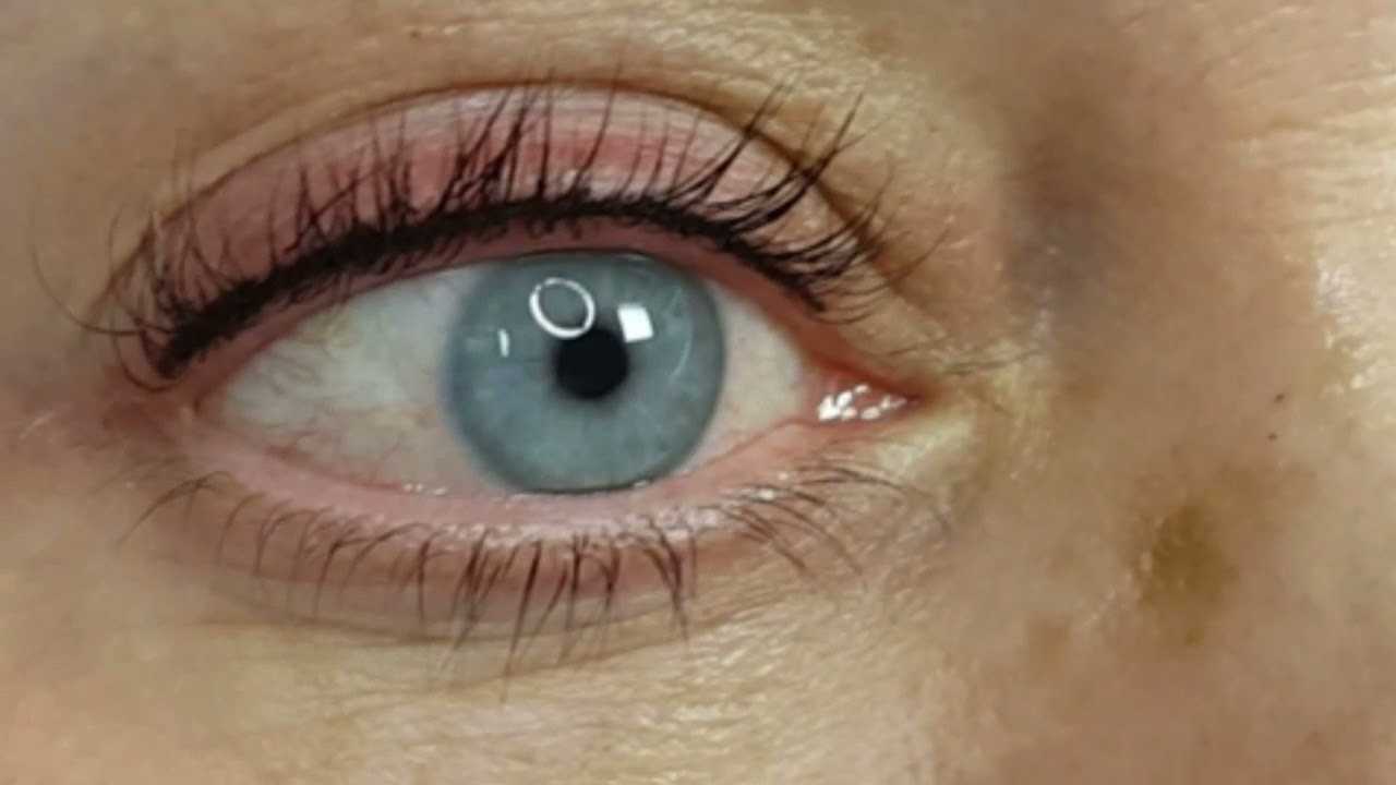 Invisible Eyeliner Permanent Makeup Micropigmentation by El Truchan @ Perfect Definition London