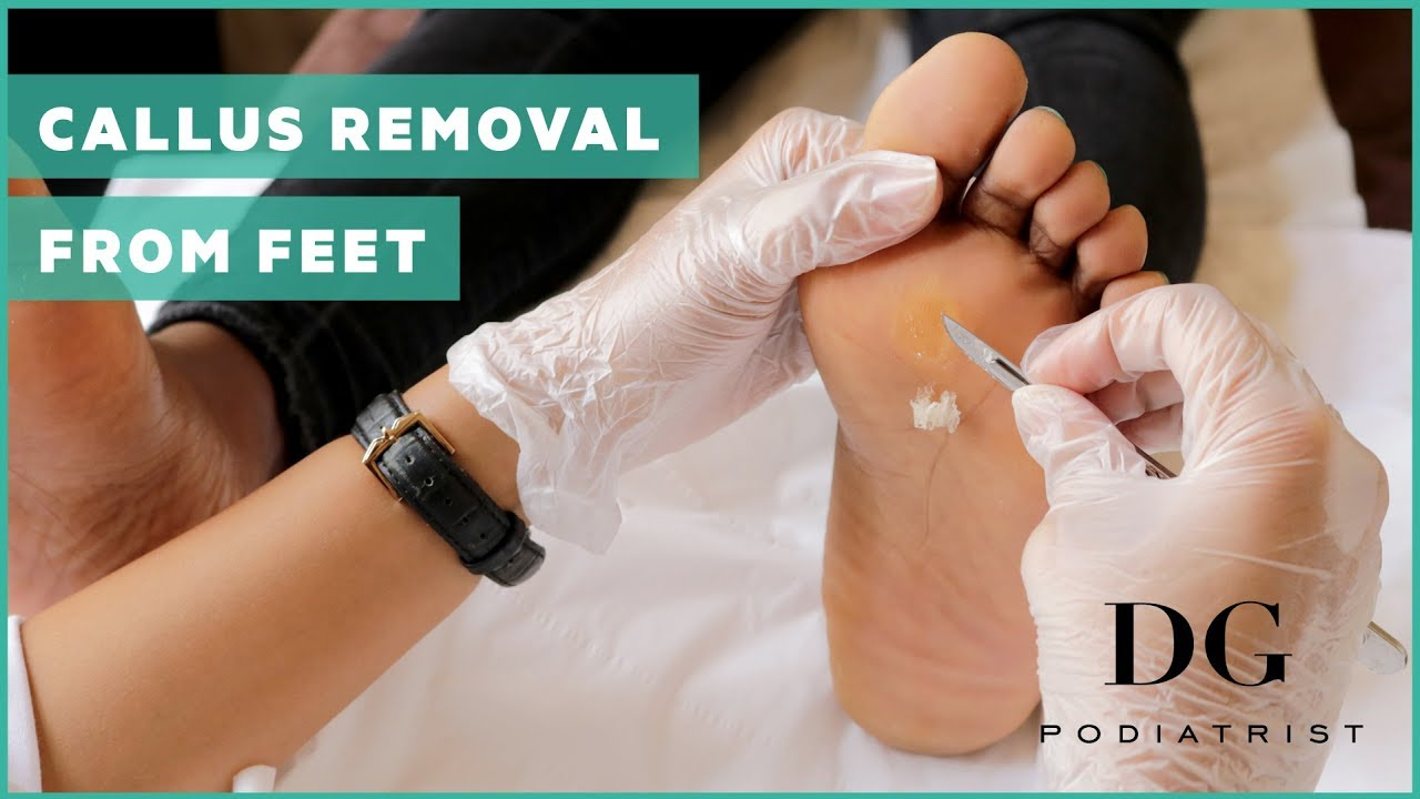 Callus removal from feet: balls of feet