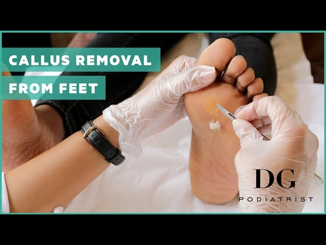 Looking after your feet can change your life | Dazed Beauty