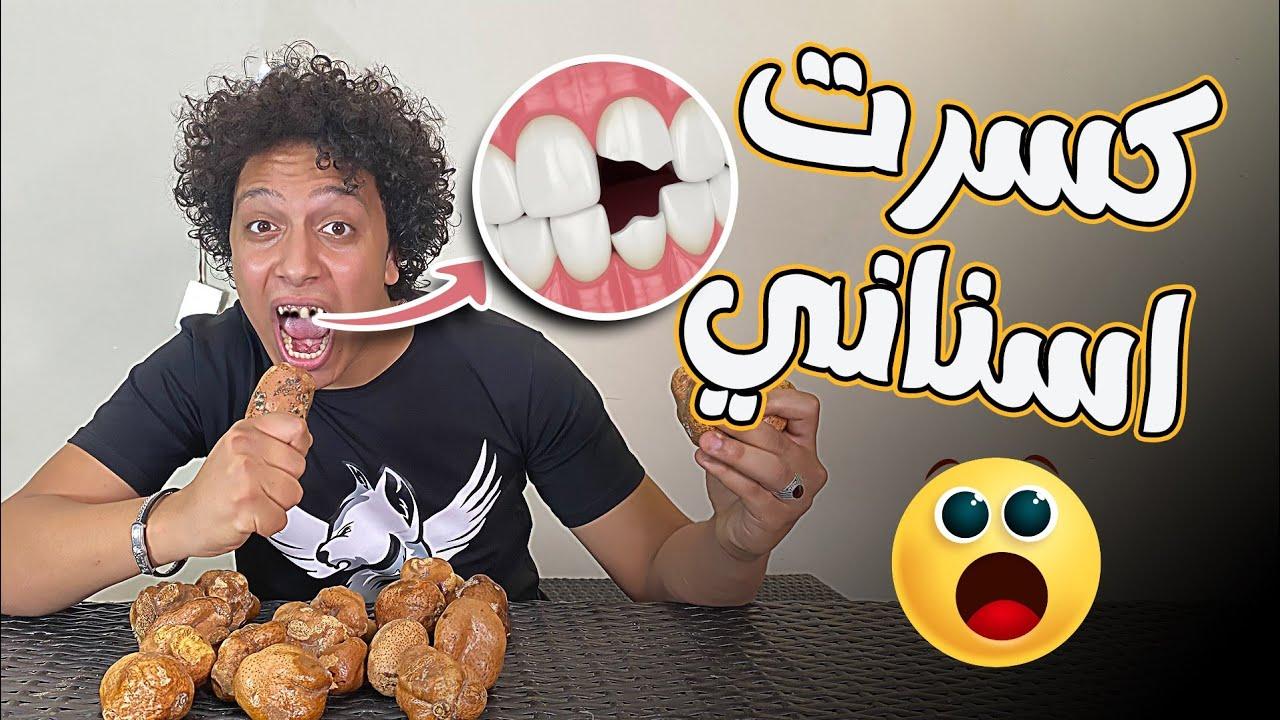 تحدي اكل الدوم مش هتصدقو سناني كانت هتتكسر!!😲