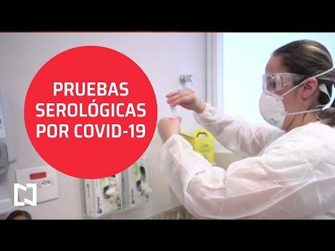 Entrevista l Pruebas