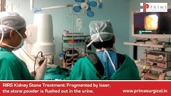 RIRS: Kidney Stone Treatment by Dr. Deepak Kirpekar