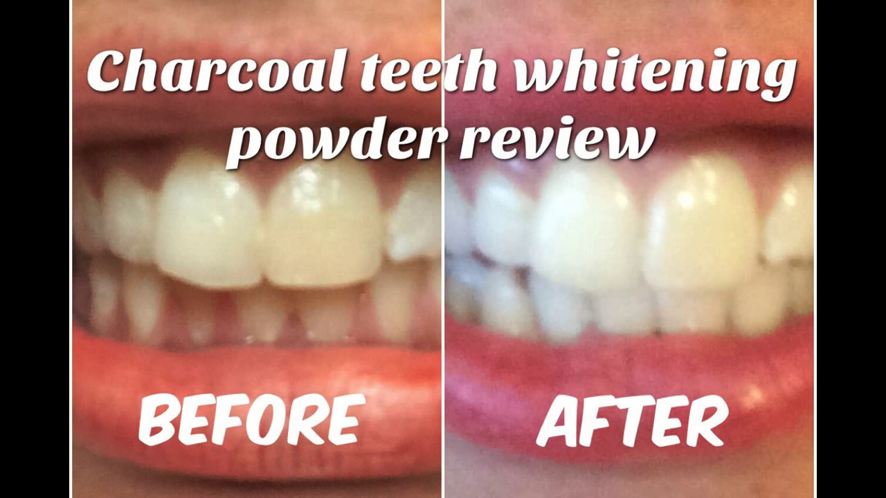 charcoal teeth whitening power review before and after youtube. Black Bedroom Furniture Sets. Home Design Ideas
