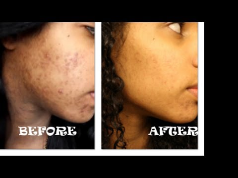 Clear Acne With Baking Soda Acne Spot Treatment Home