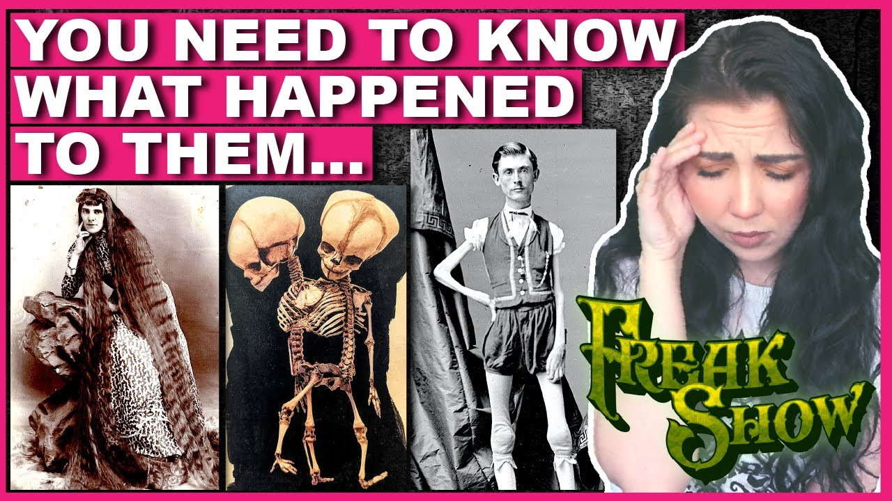 The SAD TRUTH About 'Freak Show' Performers