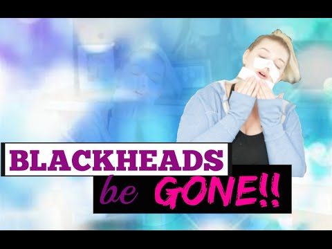 how to get rid of blackheads in a day