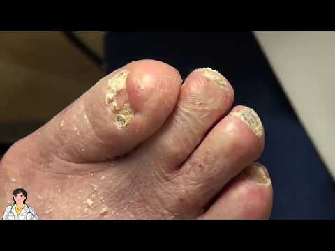 Gilmore Fans: New Dr Nail Nipper Channel – Toenail Fungus and More!