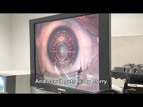 My LASIK eye surgery - All Laser, no blades. Terrifying, but worth it!!!