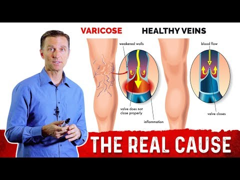 why-do-you-get-varicose-veins?