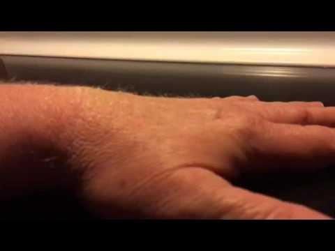 & Dehydration pinch test - YouTube