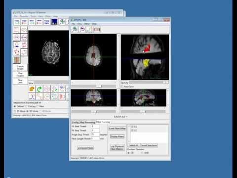 DTI Analysis and Fiber Tractography with Analyze 10.0 - Webinar