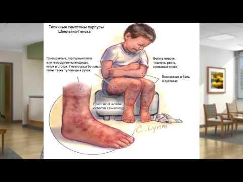 Систематизация и диагностика васкулитов и псевдоваскулитов  Презентация №4  Диагностика васкулитов м