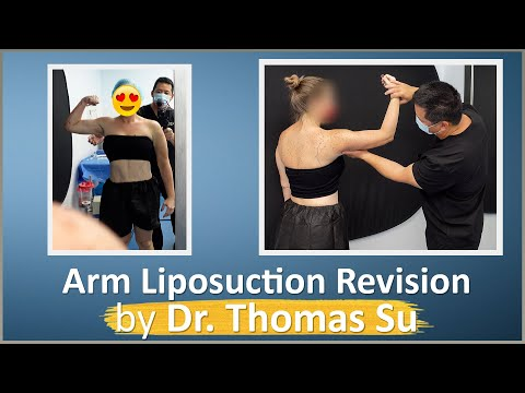 Celebrity Arms™ Liposuction with Renuvion | Lipo 360° Arms | High-Definition Results | Expert Dr. Su
